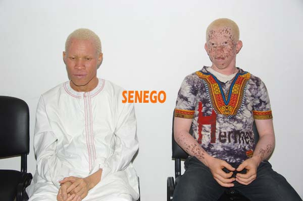 Association Nationale des Albinos du Sénégal (4)