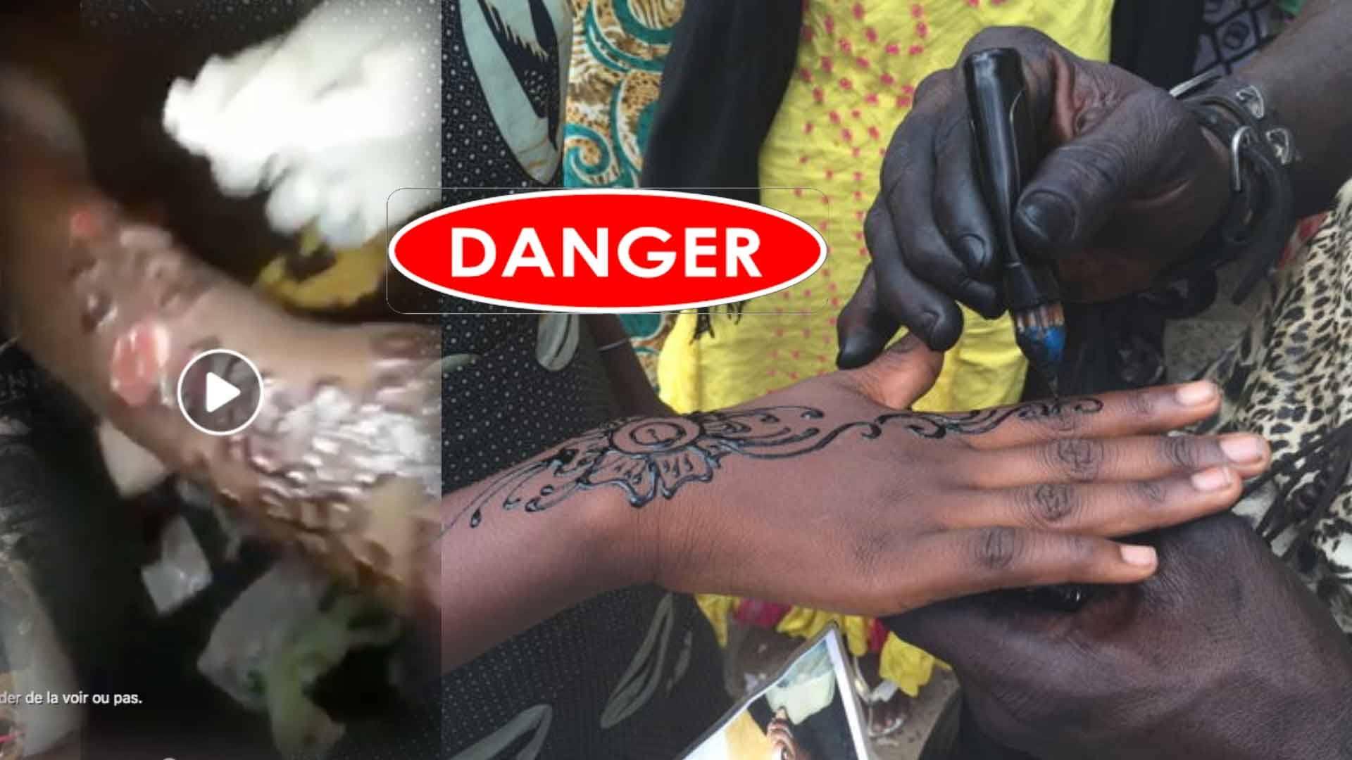 Atterrit, femme, l'hôpital, tatouer